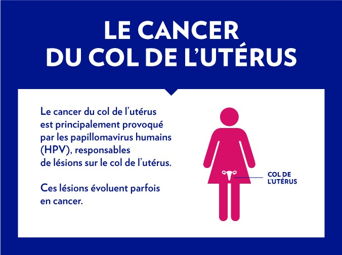 illustration cancer col de l'utérus